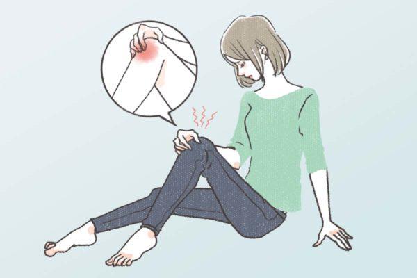 生理前のひざの関節痛に悩み、膝をさする女性